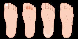 いろいろな水虫(白癬)